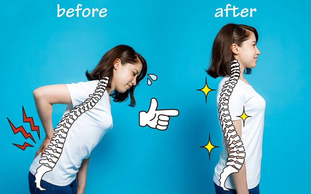 A Look at Posture and How It Can Cause Problems